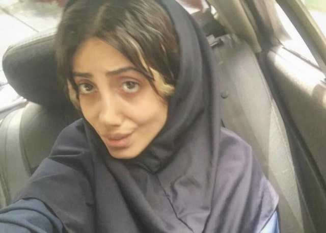 Before surgery, Sahar looked like a totally different girl